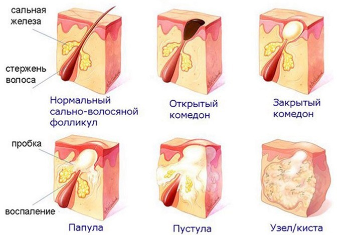 этапы формирования угрей