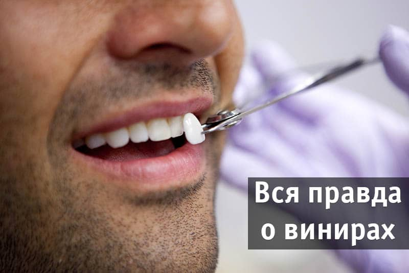 Виниры накладки зубные, что это, зубные протезы виниры, съемные зубные виниры, плюсы и минусы. Ультраниры, виниры ультраниры, виниры люминиры: что это, плюсы и минусы